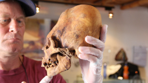 Brien-with-elongated-skull